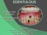 Master International – Implanto Prothetic Rehabilitation of Edentulous